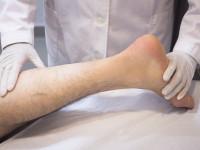 Amputált lábát szolgálta fel barátainak vacsorára egy amerikai férfi